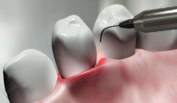 عملکرد لیزر در ایمپلنت دندان