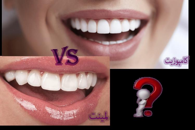 مقایسه ظاهر لبخند با لمینت و کامپوزیت دندان