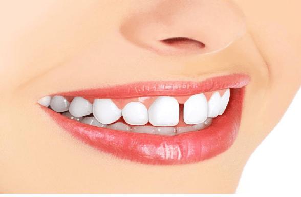 دندان های فاصله دار با ارتودنسی درمان می شود