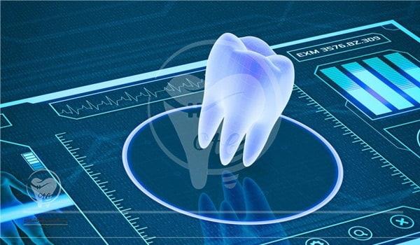 ایمپلنت بدون جراحی از روش های کاشت دندان است.