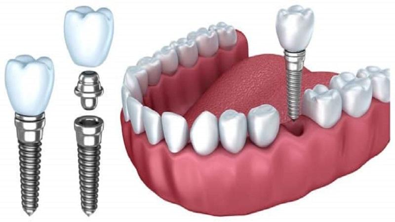 ایمپلنت سوئیسی از باکیفیت ترین برندهای ایمپلنت دندان است