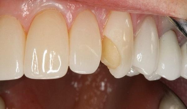 لمینت دندان شکسته که به تعویض نیاز دارد