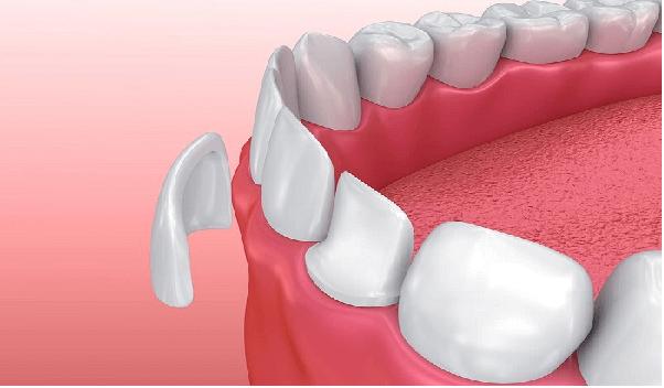 روکش تمام سرامیکی دندان بهترین انتخاب برای روکش دندان های قدامی می باشد.