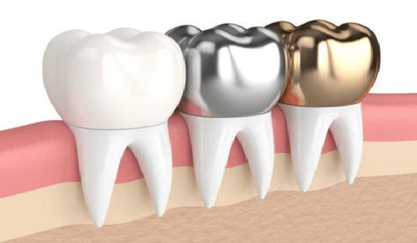 روکش فلزی یکی از بهترین انواع روکش دندان است.