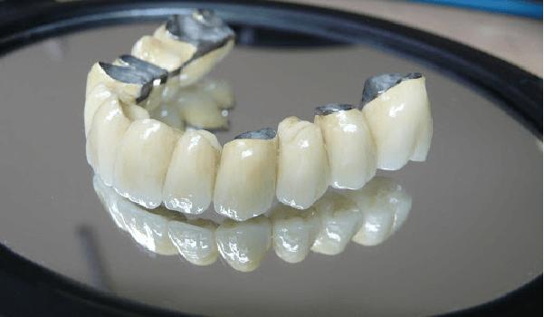 روکش فلز سرامیک ترکیبی از فلز و سرامیک است.