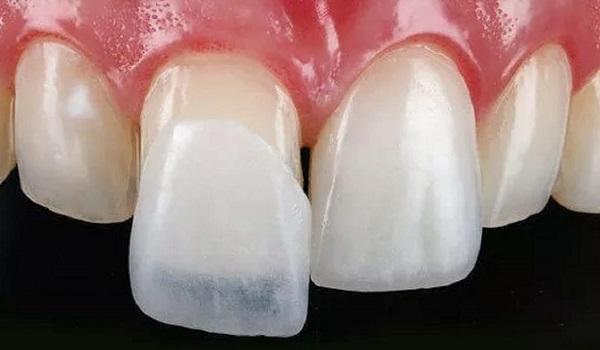 لمینت دندان بدون تراش فوق نازک