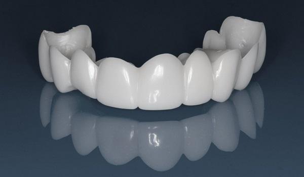 لمینت دندان متحرک