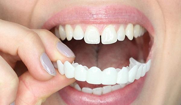 جهت استفاده از لمینت متحرک، آن را روی دندان قرار دهید