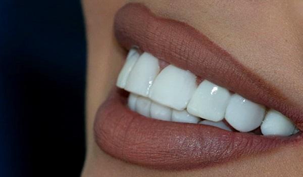 زیبایی لبخند، از مزایای لمینت متحرک دندان