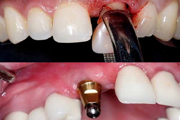 انجام ایمپلنت فوری بلافاصله پس از کشیدن دندان در یک روز