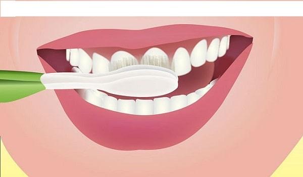 رعایت بهداشت دهان و دندان می تواند از نارسائی ایمپلنت دندان جلوگیری کند