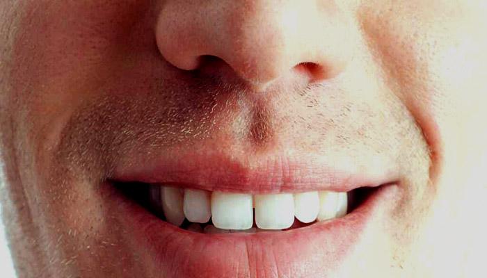 لبخندی زیبا با کاشت دندان