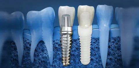 نارسایی ایمپلنت دندان