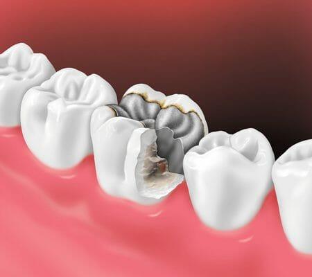 آسیب دیدن ایمپلنت دندان