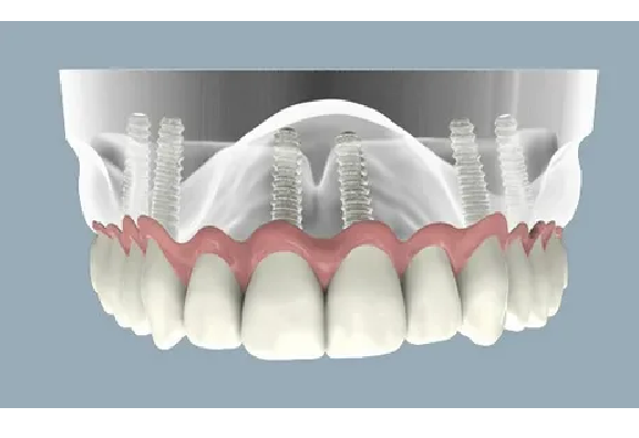 ایمپنلت تیتانیوم یا زیرکونیا در ایمپلنت دندان جلو