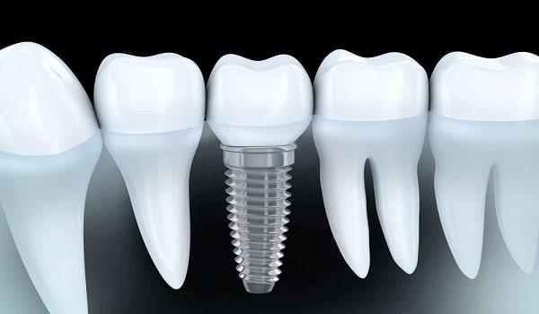 یکی از روش های کاشت دندان، ایمپلنت است