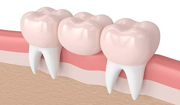 یکی از روش های جایگزینی دندان، بریج دندان است