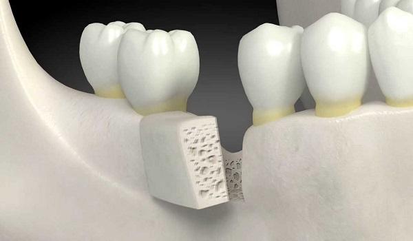 یکی از روش های پیوند استخوان استفاده از بلوک استخوانی است