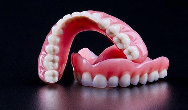 دندان مصنوعی یکی از روش های کاشت دندان