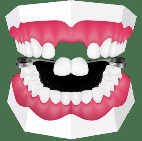 دندان مصنوعی راهی برای جایگزینی دندان بدون ایمپلنت است