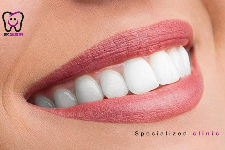 دندان های کامپوزیت شده