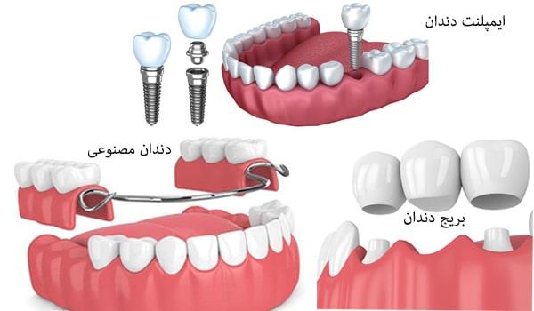 روش های جایگزینی دندان: ایمپلنت-دندان مصنوعی-بریج دندان