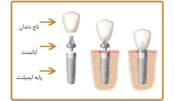 ایمپلنت دندان ساختاری سه بخشی دارد.