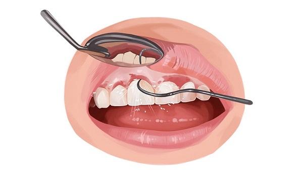 یکی از مشکلات ایمپلنت دندان، عفونت آن است
