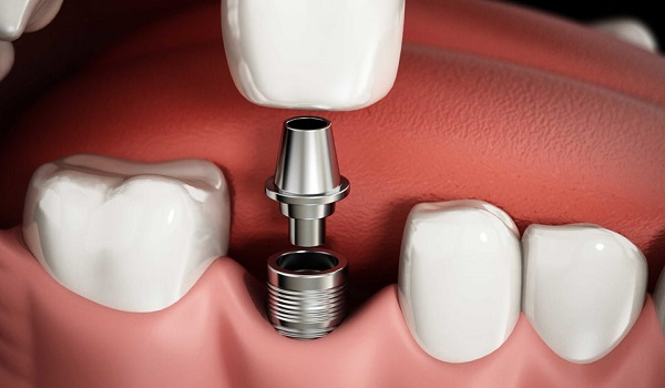 علت بروز عفونت در ایمپلنت دندان چیست