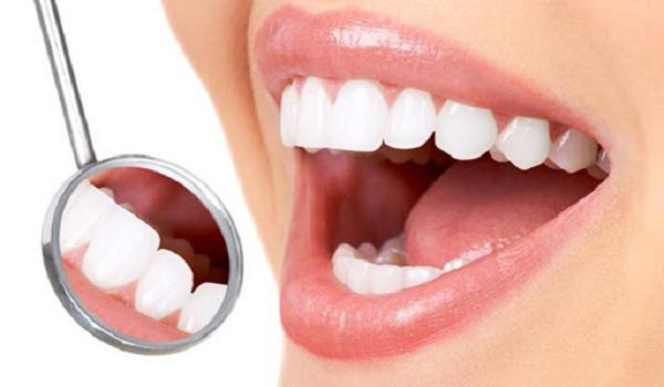 لبخندی زیبا در نتیجه ایمپلنت دندان