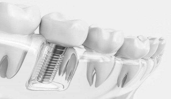 چرا دندان ایمپلنت شده لق میشود؟