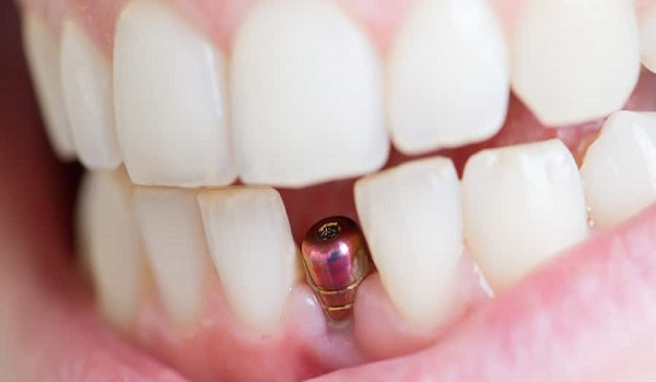 لق شدن و افتادن دندان ایمپلنت شده.