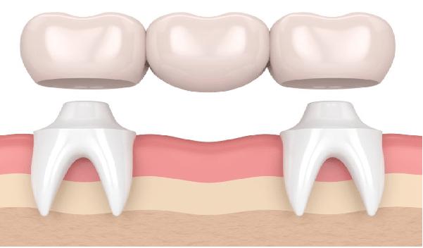 علائم نارسائی ایمپلنت دندان