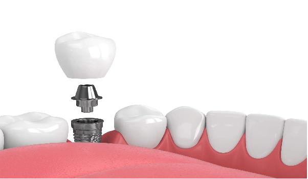 یکی از عوامل بروز نارسائی در ایمپلنت دندان،ضربه به ایمپلنت است.