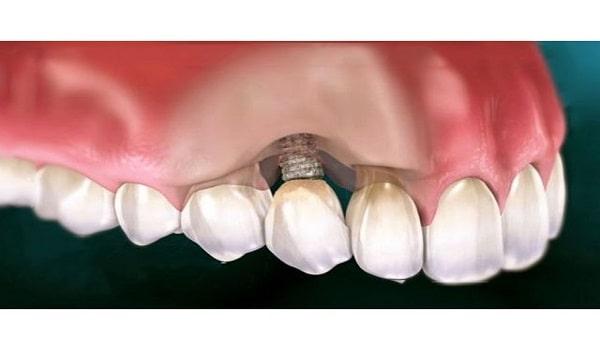 رایج ترین بیماری لثه در ایمپلنت دندان، پری ایمپلنتایتس است