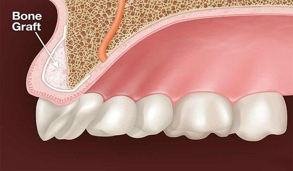 پیوند استخوان در ایمپلنت دندان-