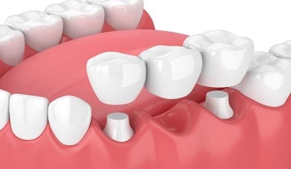 بریج یکی از روش های کاشت دندان بدون ایمپلنت است