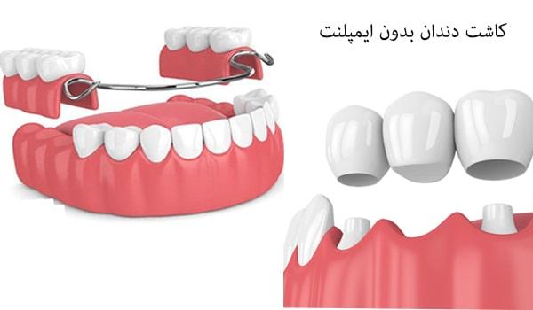 یکی از روش های کاشت دندان، کاشت بدون ایمپلنت است.