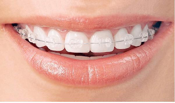 ارتودنسی سرامیکی، یکی از انواع ارتودنسی دندان