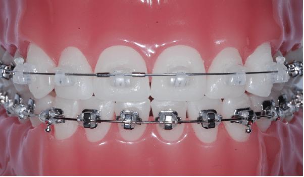 ارتودنسی دیمون، یکی از انواع ارتودنسی دندان