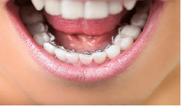 ارتودنسی لینگوال یا پشت دندانی از انواع ارتودنسی دندان