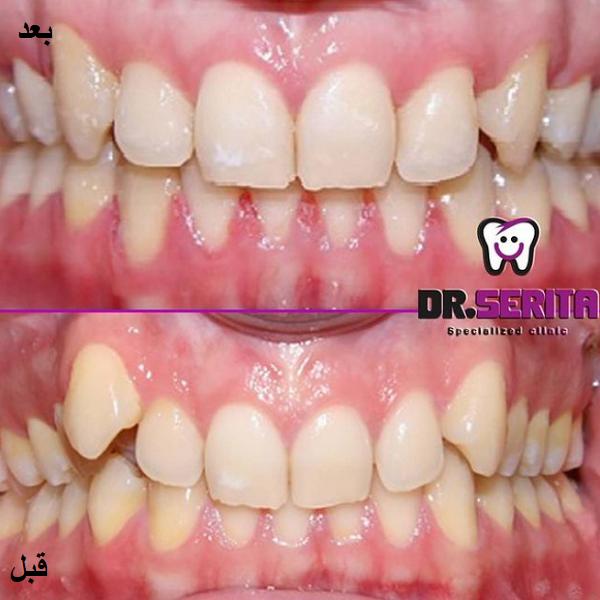 نمونه ارتودنسی دندان دکتر سریتا
