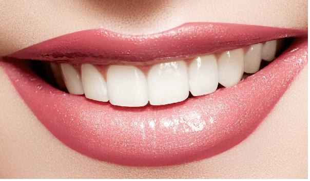 انواع لمینت دندان؛ لمینت کامپوزیتی، لمینت برلیانس و سرامیکلی
