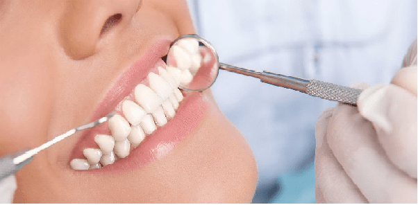 انواع کامپوزیت دندان