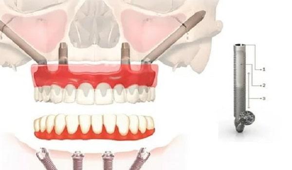 تفاوت ایمپلنت عادی و ایمپلنت دندان زایگوما