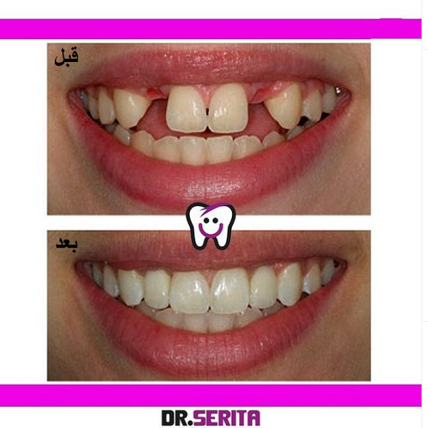 نمونه ایمپلنت دندان دکتر سریتا