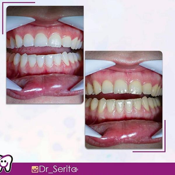 نمونه بلیچینگ دندان دکتر سریتا