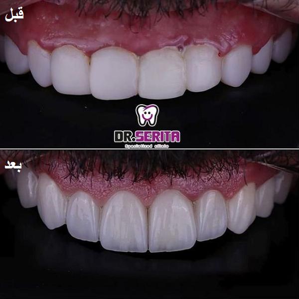 نمونه جراحی لثه دکتر سریتا