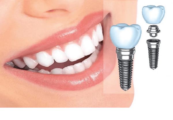 طول عمر ایمپلنت دندان در صورت انجام مراقبت های لازم،حداقل 20 سال است