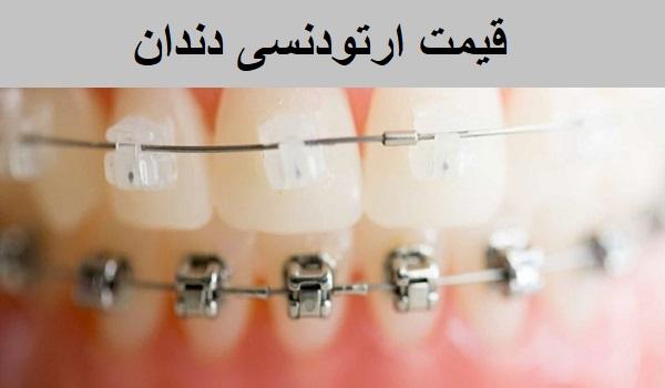 قیمت ارتودنسی دندان